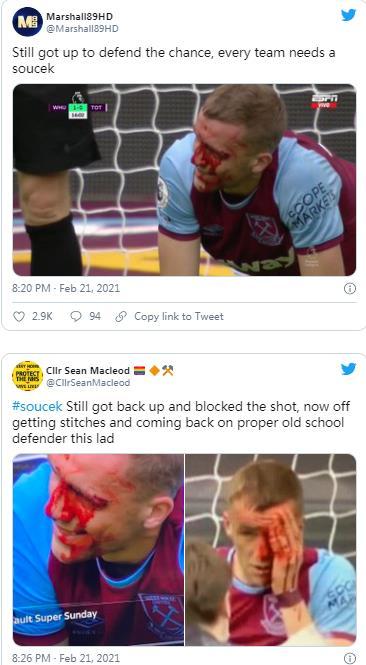 托马斯•索切克与桑切斯发生头部碰撞后浑身是血,但仅在七分钟后重返球场